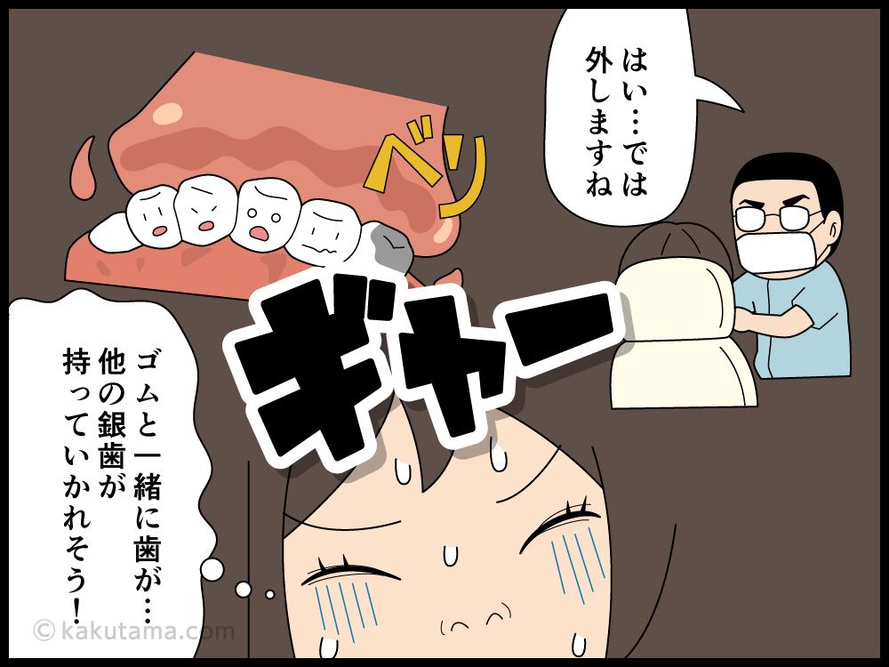 歯医者で歯型をとる作業が嫌な漫画